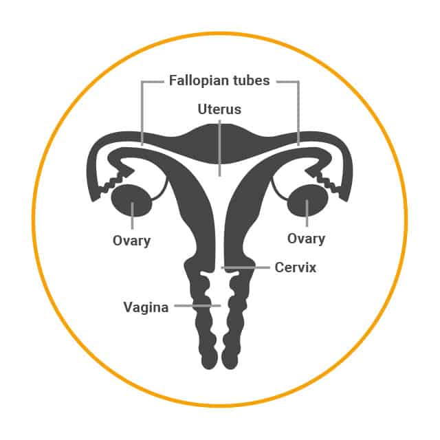 Female sterilisation involves cutting, sealing or blocking the fallopian tubes