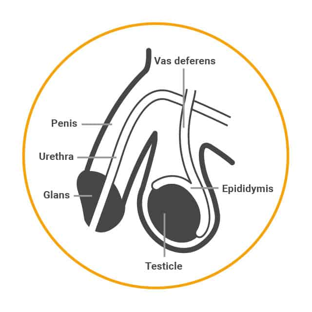 Male sterilisation is done by cutting and sealing or tying the vas deferens